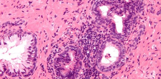 800px-Inflammation_of_prostate