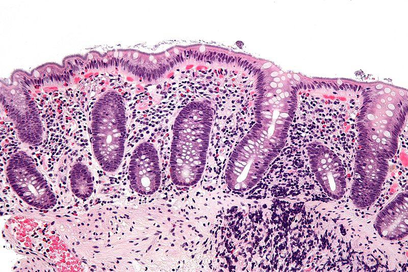 800px-Intestinal_spirochetosis_-_high_mag