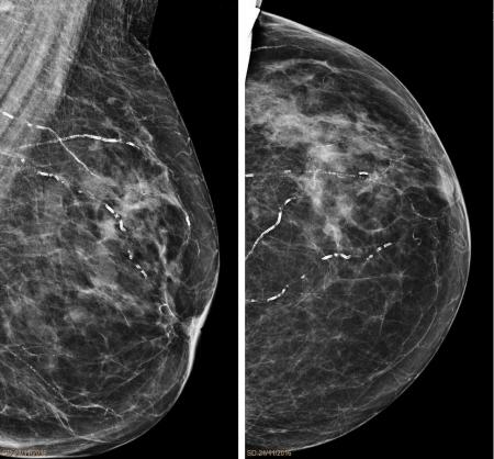Arteriolosclerosis_mammography