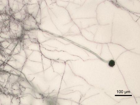 Aspergillus_niger_Micrograph