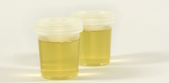 Inflammation Urine Container Urine The Test