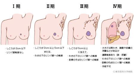 乳がんステージ