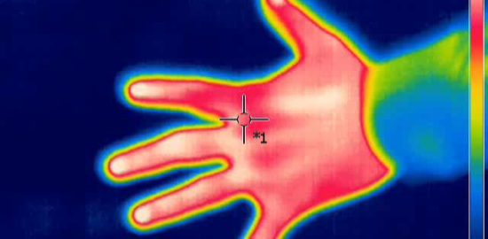 Thermal_image_-_hand_-_1