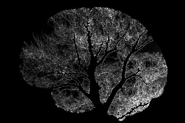 brain-2139197_960_720