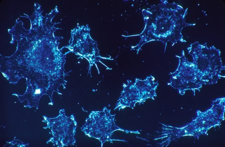 cancer-cells-541954_640