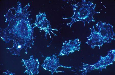 cancer-cells-541954__340