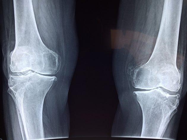 knee-2253047_960_720