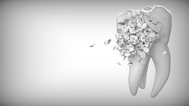 tooth-2874551__340