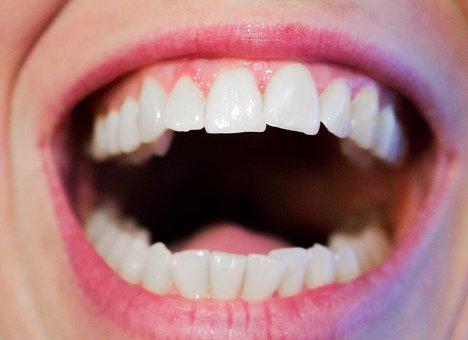 歯 min