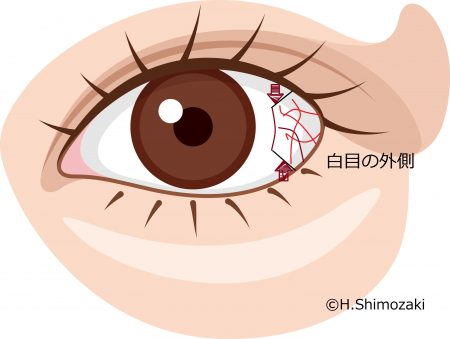 白目の外側 毛細血管