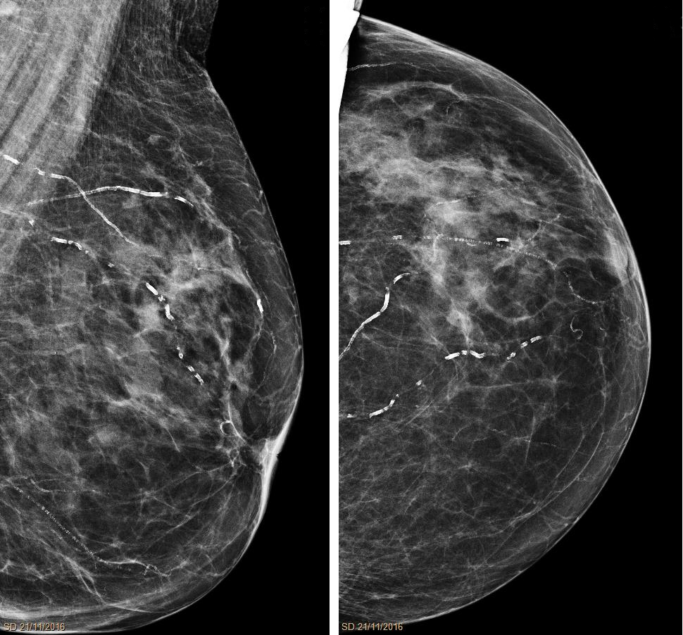 Arteriolosclerosis_mammography