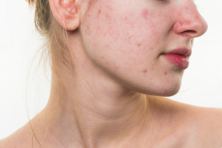 bad-habits-that-can-cause-pimples