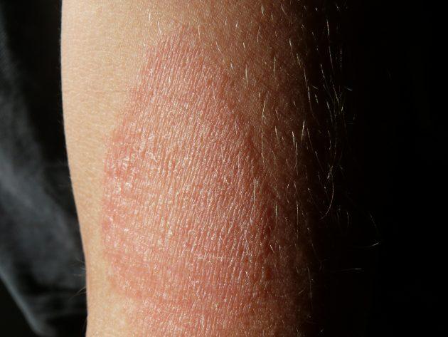 dermatite o eczema atopico avambraccio 2015