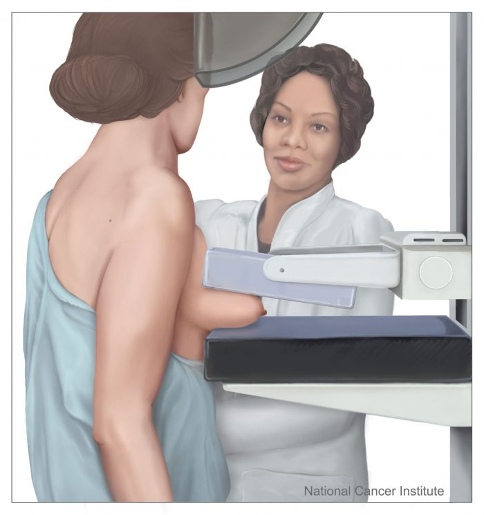MammographyinprocessGraphic