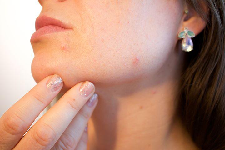 acne-1606765__480-1