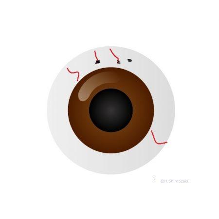 目玉イラスト上部黒点