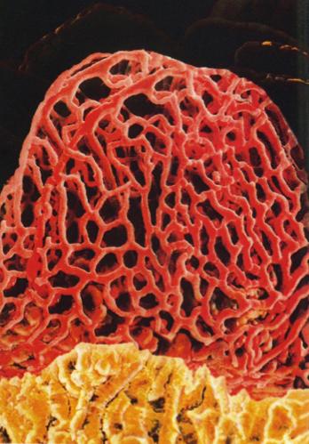 腸絨毛画像