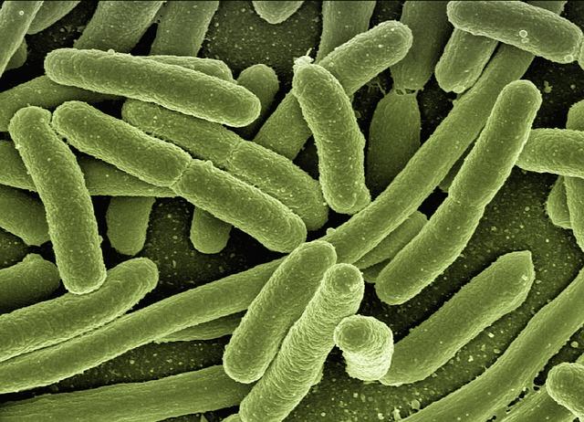 koli-bacteria-123081_640