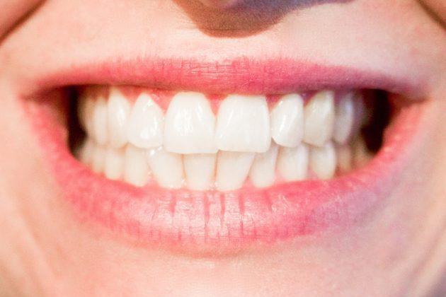 teeth 1652976 960 720