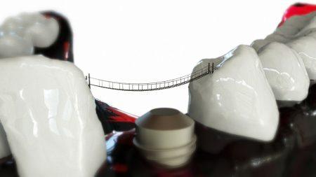 teeth-2833421_1280