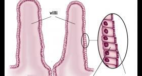 小腸のパイエル板をご存知ですか?パイエル板の機能を発揮すると免疫力は飛躍的に向上する!?腸内環境を良くするために必要なのは乳酸菌だけではない!○○の量が決め手です。