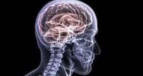 2025年に700万人を超えると予想される認知症。誰にでも必ず訪れる老いを平穏に暮らし認知症を予防するために今すぐ改善したい食生活。