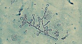 今、多くの日本人の身体はカンジダ菌に蝕まれている?!大病を防ぐ為には、まずカンジダを制するべし。私が実践して効果を実感したカンジダ退治の方法。