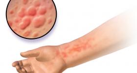 アトピーの症状が出た我が子の肌をステロイドを使わずたったの2ヶ月でスベスベ肌に戻した6つの方法